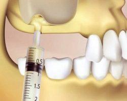 Синус-лифтинг челюсти: правильная подготовка к имплантации зубов
