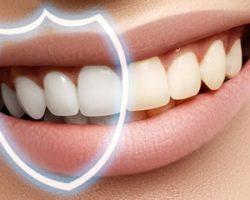 Ремотерапия: показания и противопоказания, методы восстановления эмали зубов дома и в стоматологии