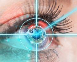 Какая требуется реабилитация после лазерной коррекции зрения?